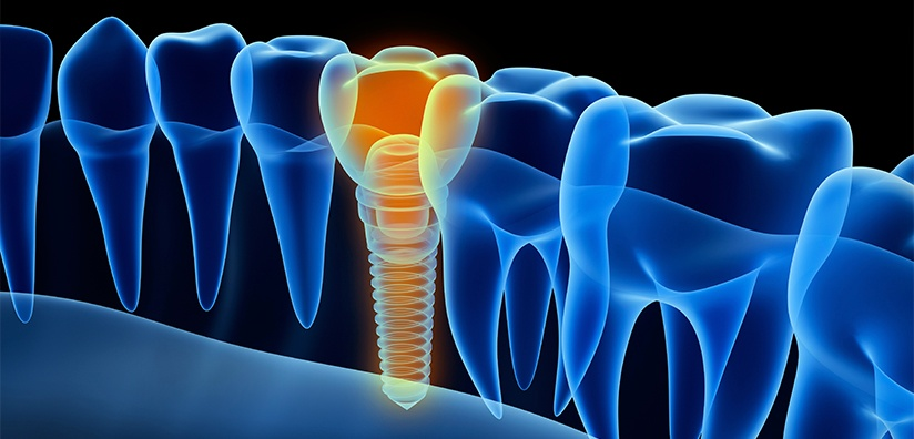 BENEFITS OF USING CT SCANS FOR DENTAL IMPLANTS