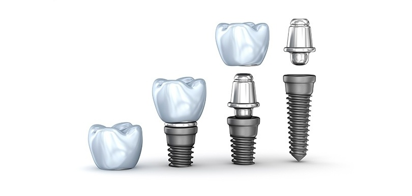 SCREW-RETAINED OR CEMENT-RETAINED DENTLA IMPLANTS