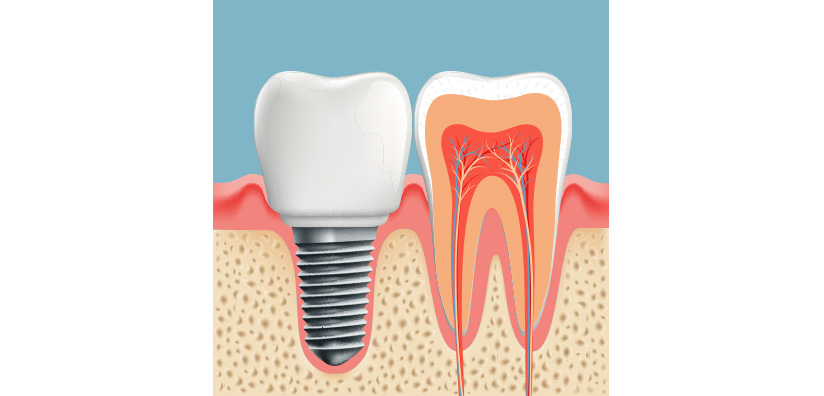 STUDY: Natural Tooth Preservation Versus Extraction and Implant Placement