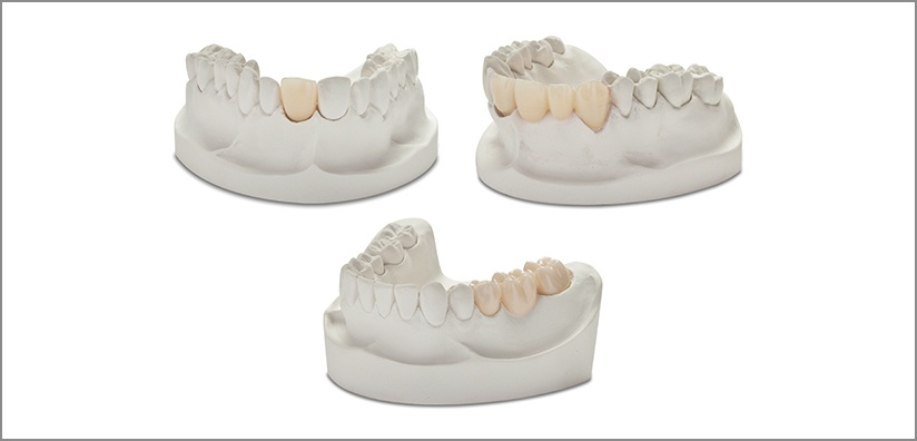 How to Achieve the Best Possible Results Using Zirconia for Crowns, Bridges, and Dental Implants