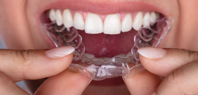 STUDY (Netherlands): Experience with Bruxism in the Everyday Oral Implantology Practice