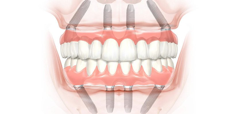 """WHY """"All-On-Four"""" DENTAL IMPLANT PROCEDURES ARE EASIER THAN YOU MIGHT THINK"""