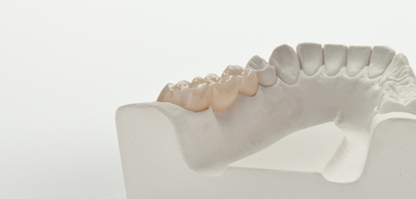 WHY ZIRCONIA PRODUCTS ARE WOTH THE INVESTMENT