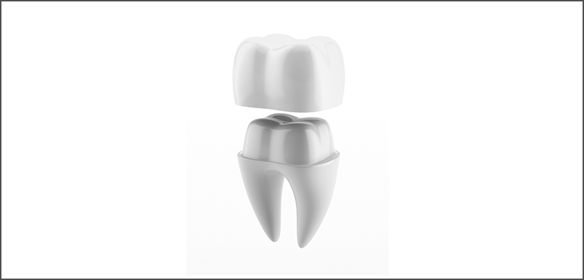 ZIRCONIA DENTAL CROWN CEMENTATION DONE RIGHT