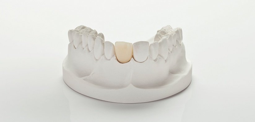 ZIRCONIA CROWNS PREPARATION GUIDELINES