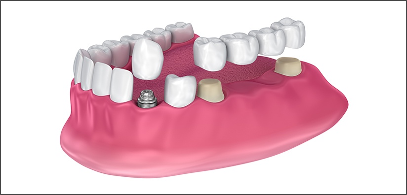 TIPS FOR ALL-CERAMIC CROWN CEMENTATION